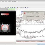brainanalyze 150x150 - Brain Products Analyzer 2 Hasp HL Dongle