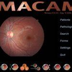 imacam 150x150 - IMACAM ADVANCED Custom License