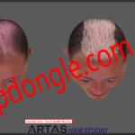 Artas 1 150x150 - ARTAS Hair Studio 3 Sentinel HL Dongle Clone