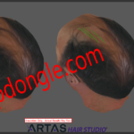Artas1 150x150 - ARTAS Hair Studio 3 Sentinel HL Dongle Clone